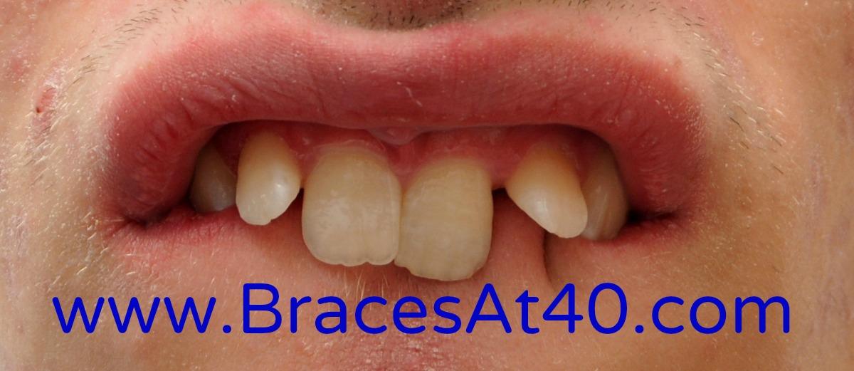 Straight teeth dating